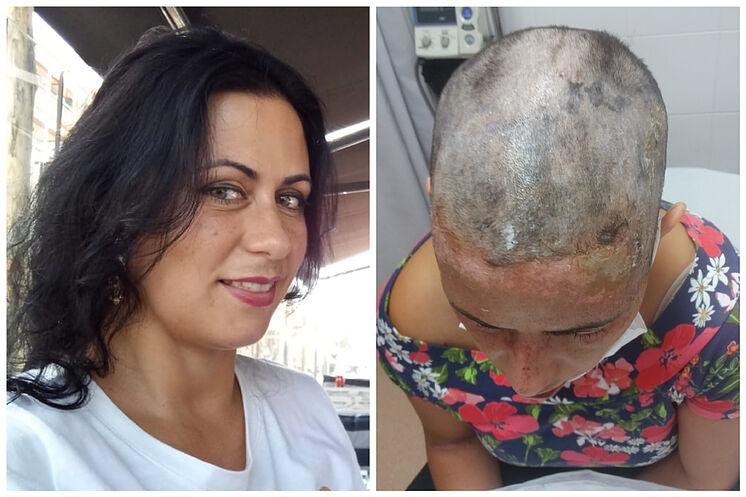 Ana Maria, avant et après
